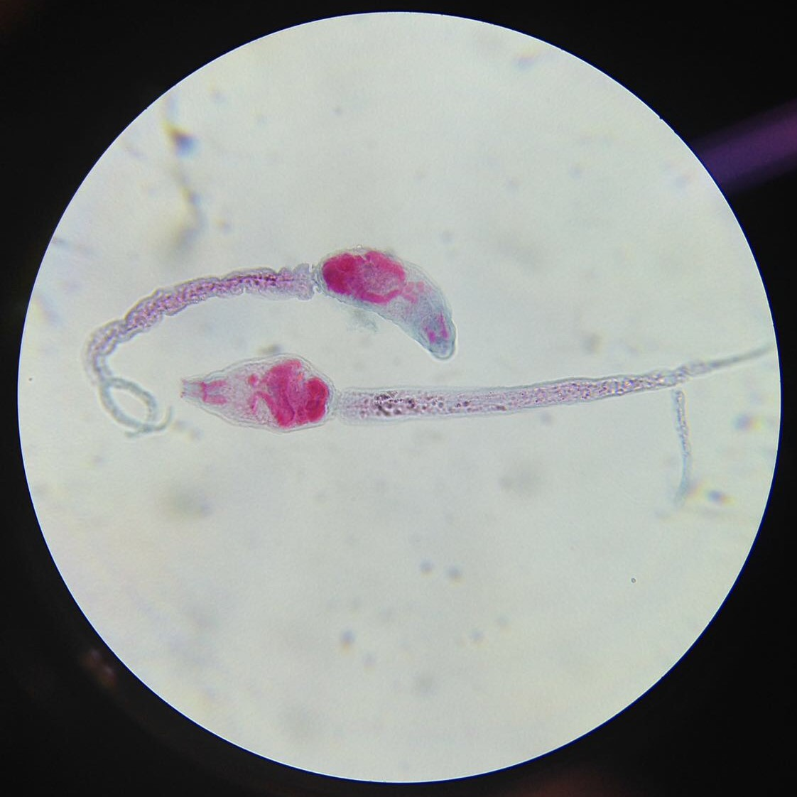 parasitic worm infections -
