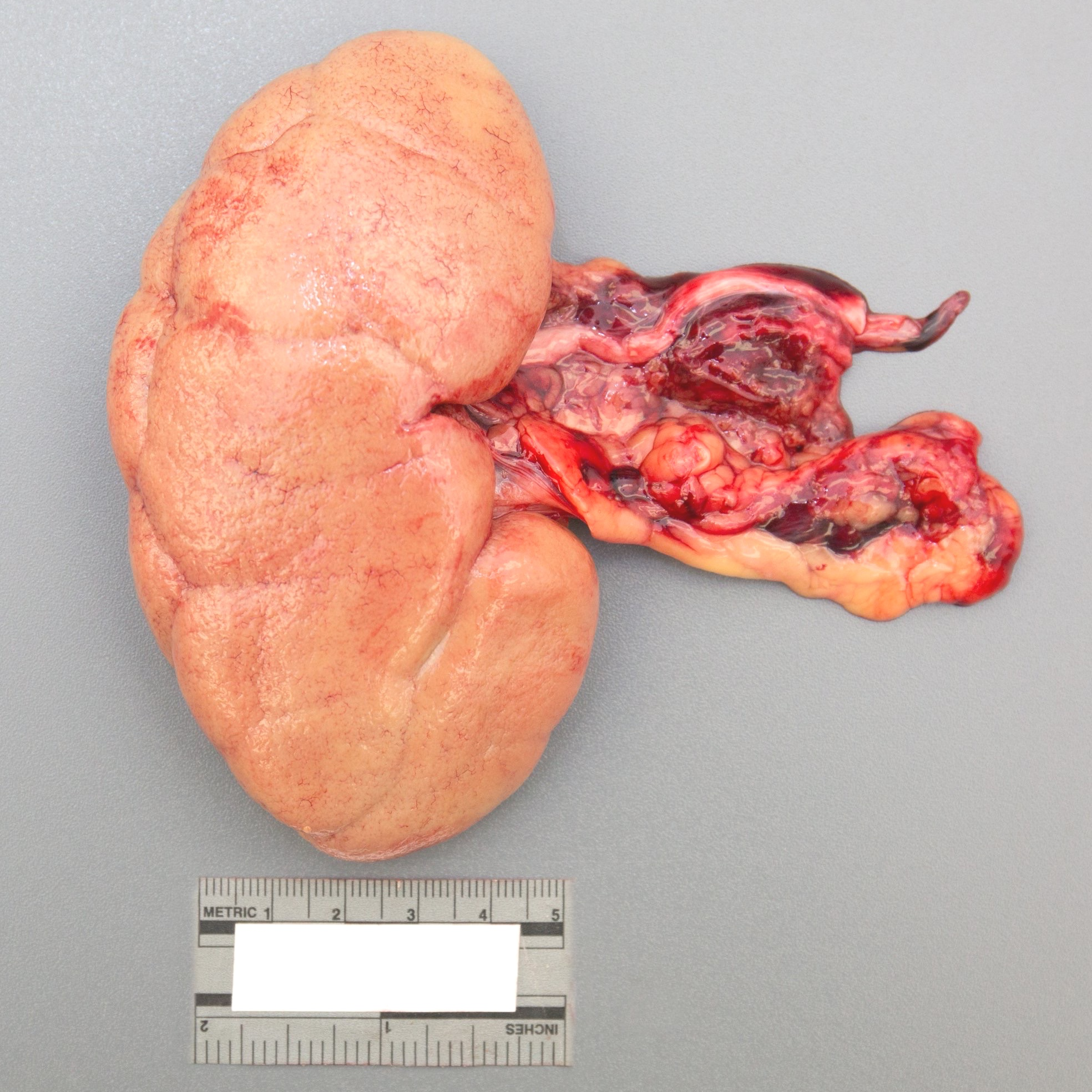 Kidney: Pale, diffuse exsanguination