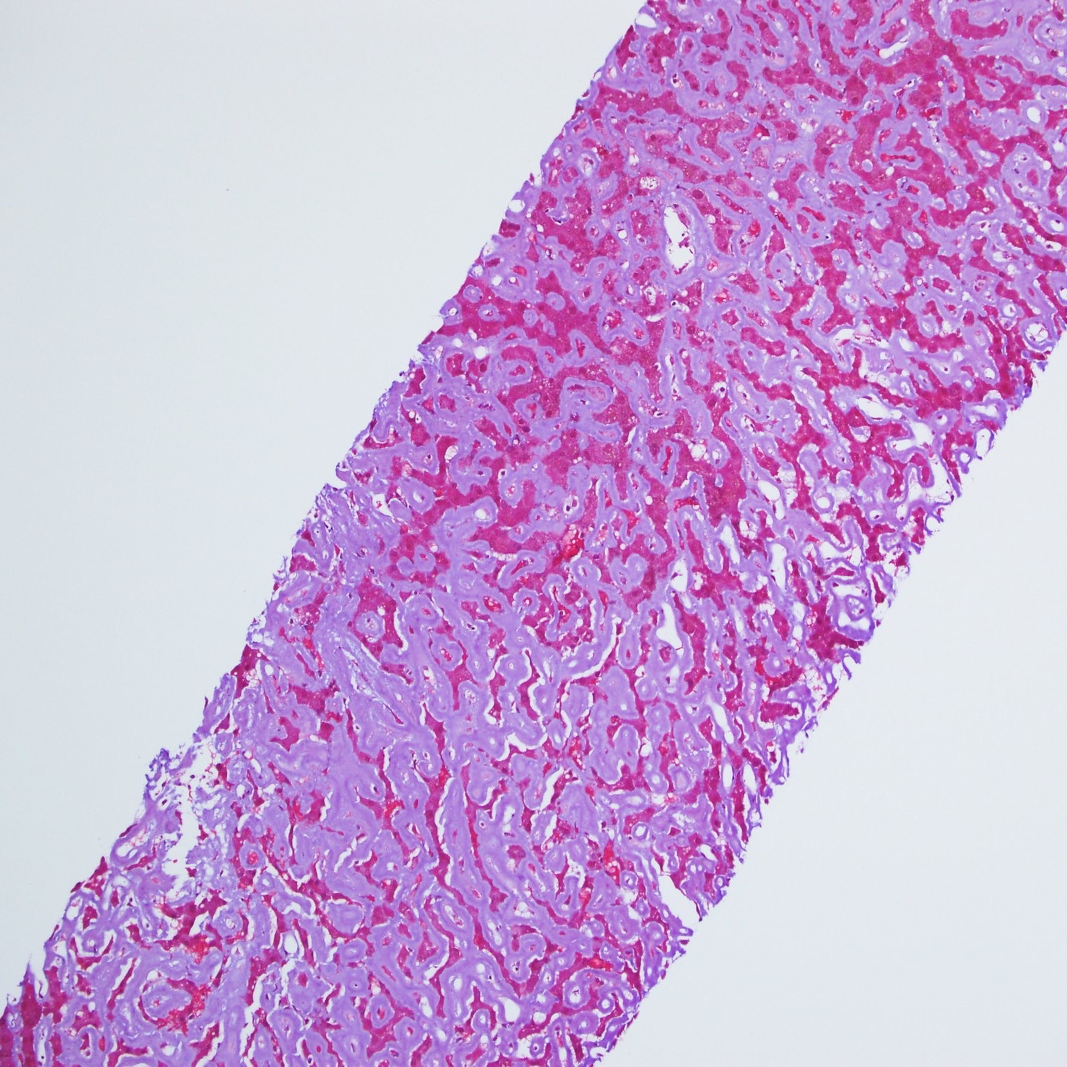 Liver Biopsy: Amyloid diffuse