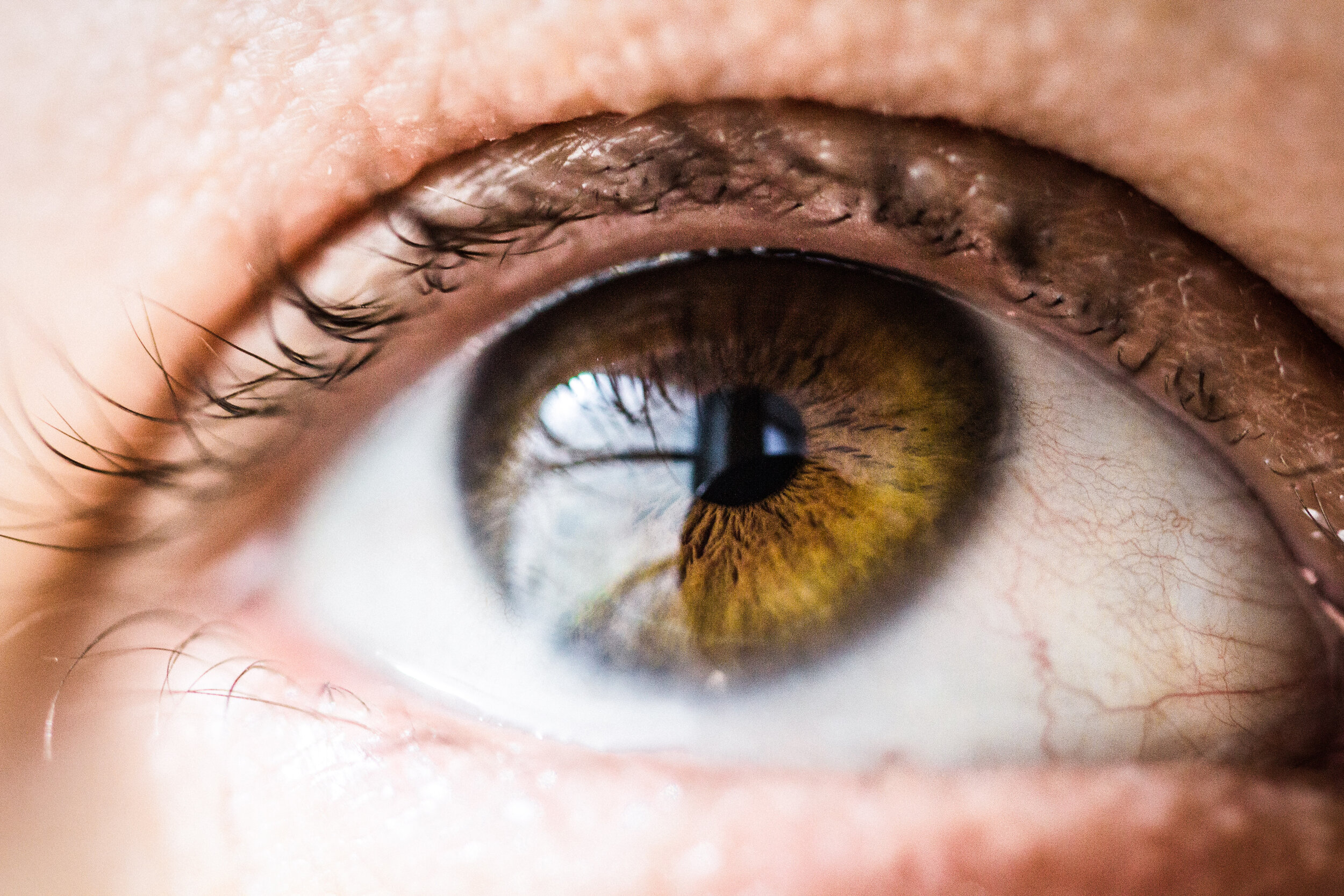 Ocular Lead Toxicity - Target Organ Toxicity