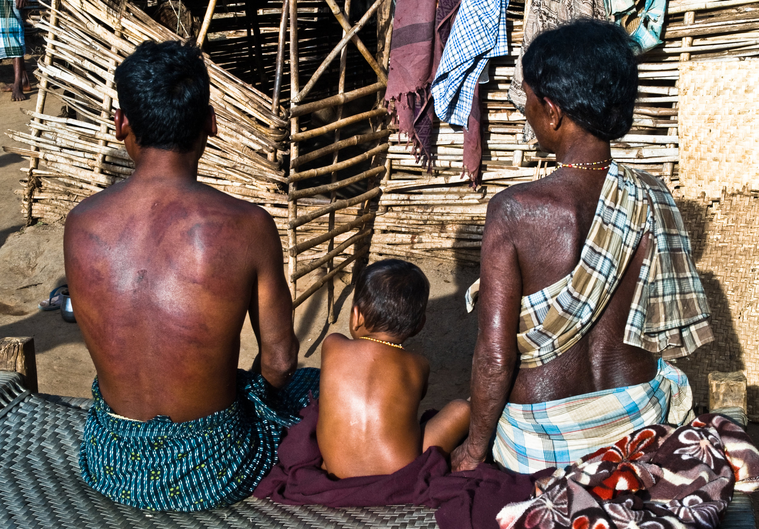 Z10ii Adivasis who were beaten by the police and whose villages were burnt 2.jpg