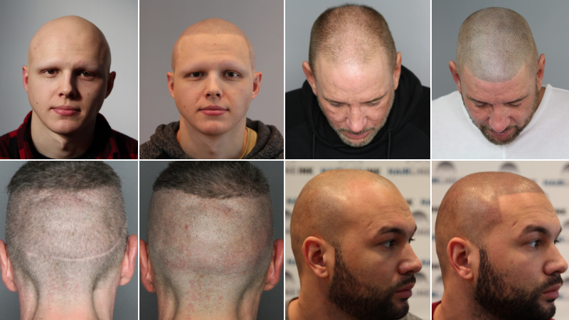 What-is-scalp-micropigmentation-before-and-after-2018.png