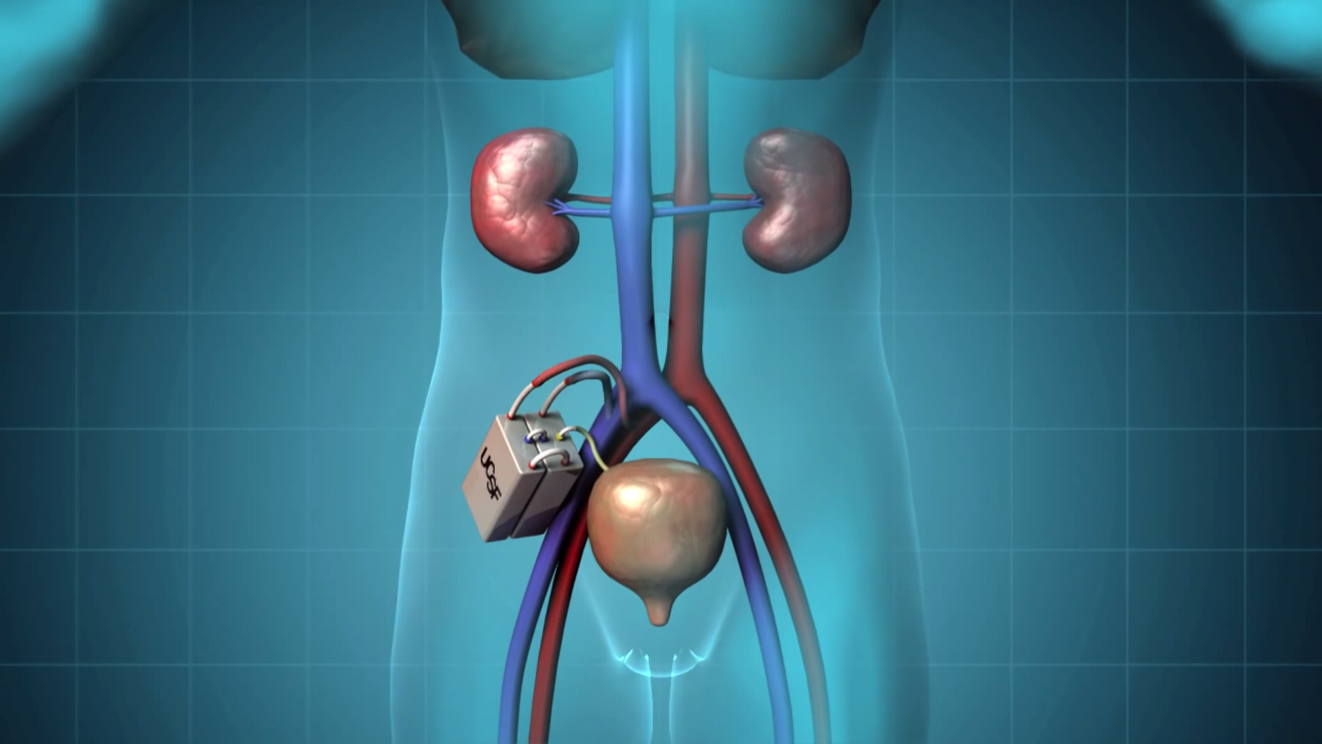 The-Kidney-Project-3.png
