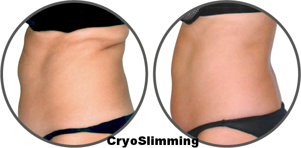Stomach@4x.png
