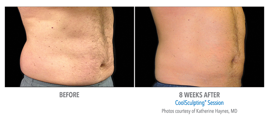 coolsculpting-Male-Abdomen-Photo Courtesy of Dr. Haynes-Small.jpg