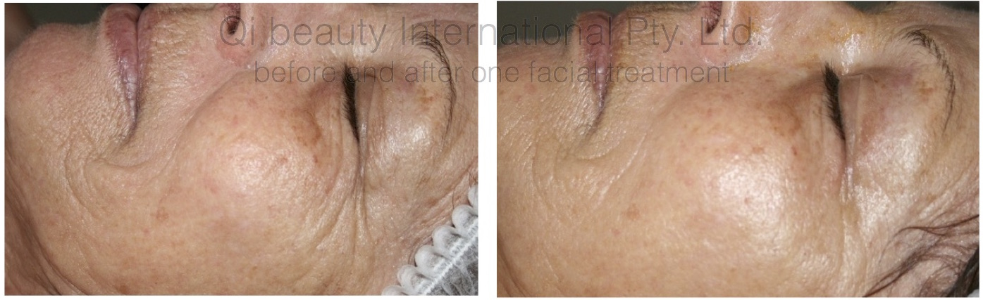 Qi beauty™ guarantees results. Before and After One Qi beauty Facial Treatment.