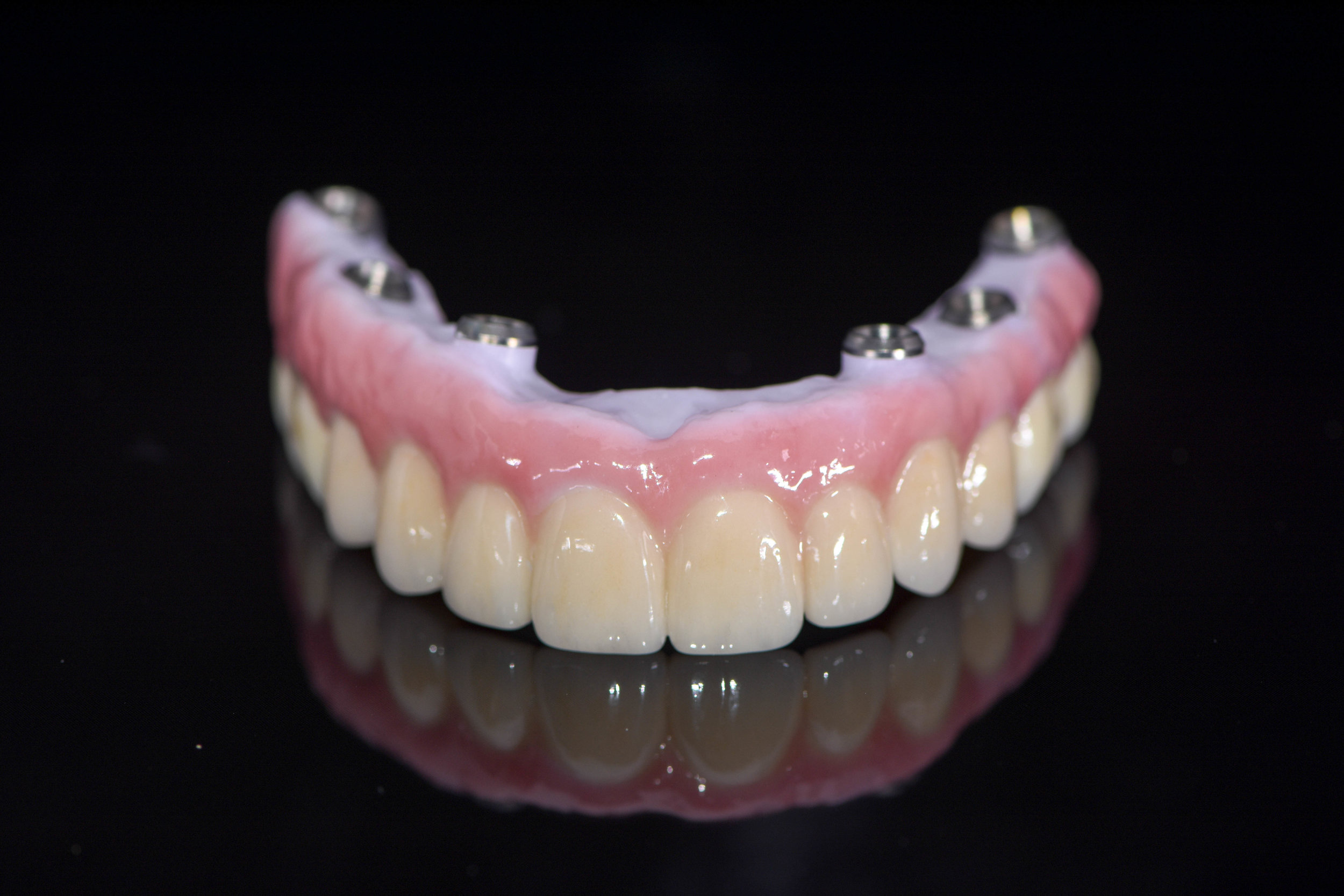 Completed implant denture