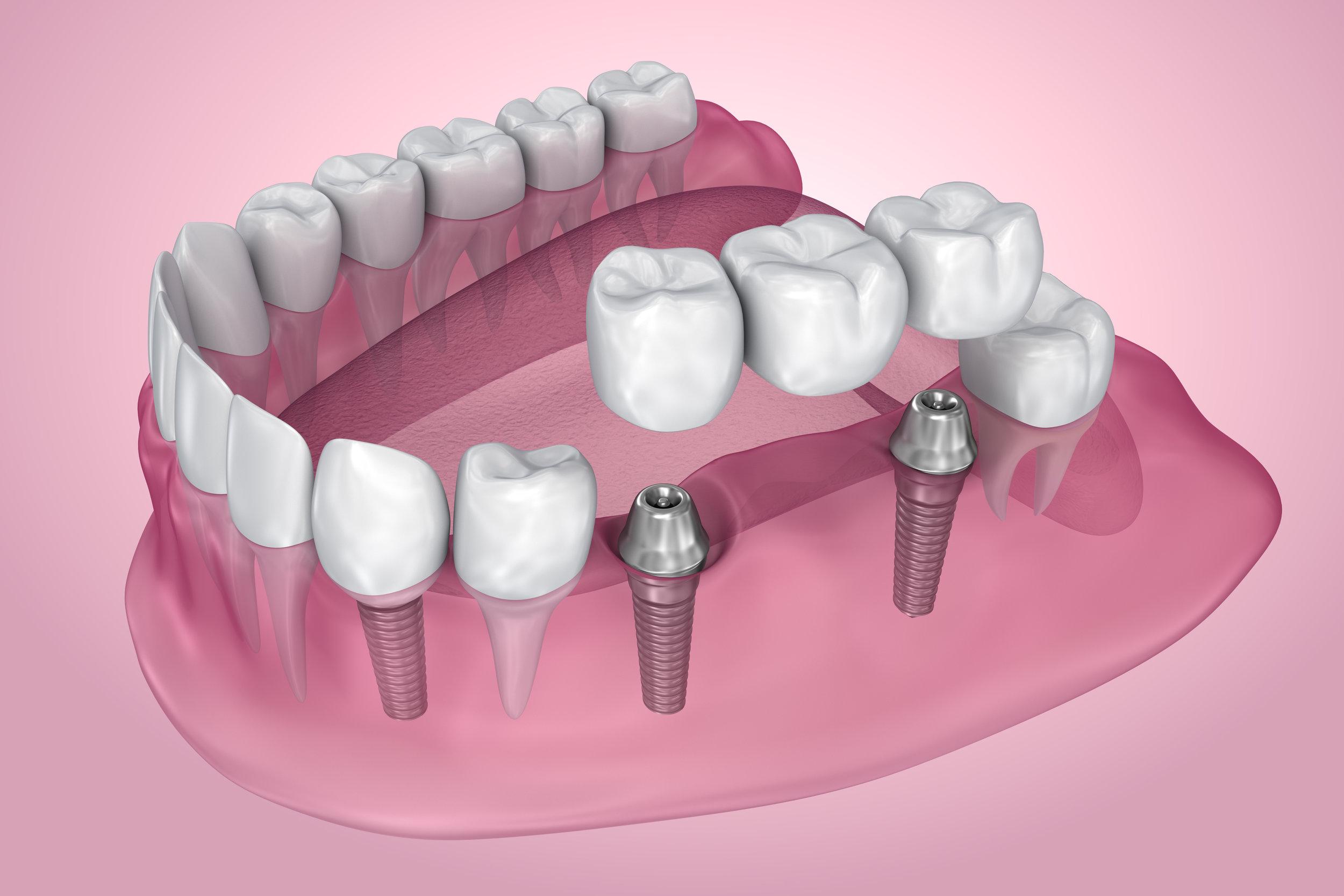 Implant Prosthetics