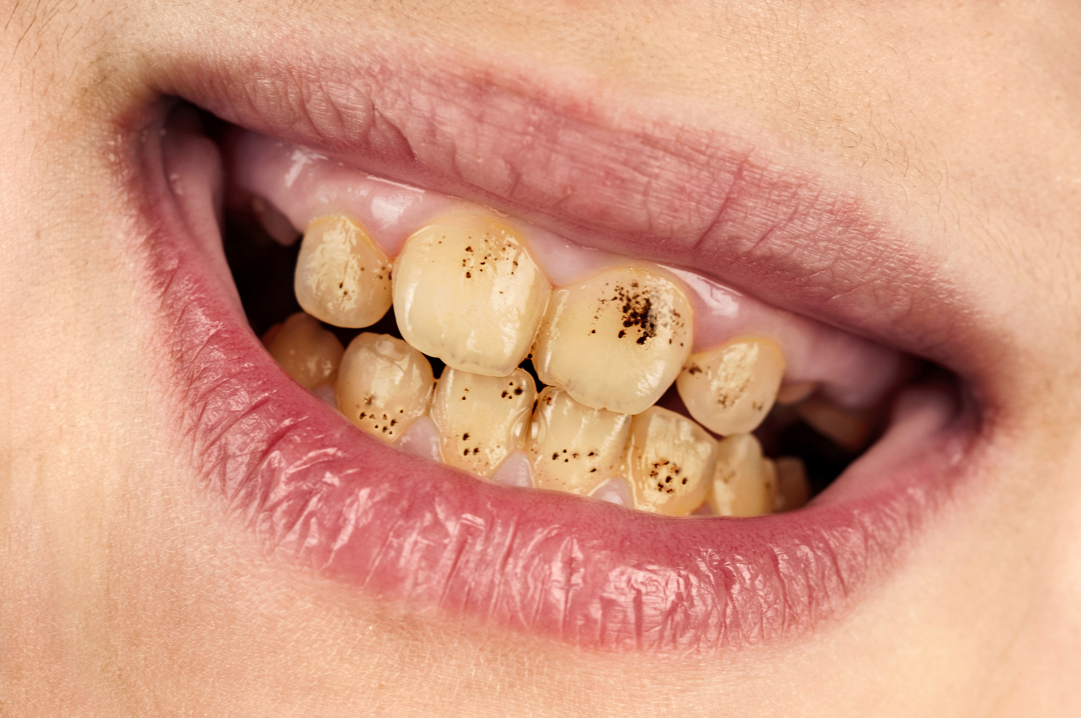 Congenital Dental Disorders
