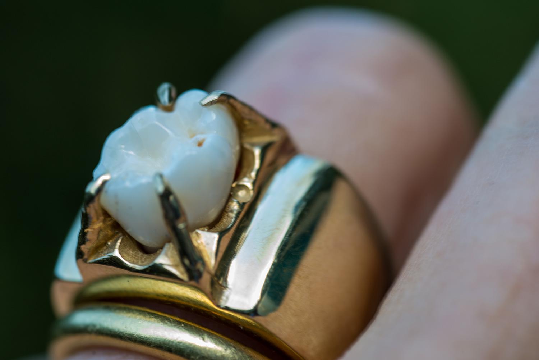 Gold molar ring