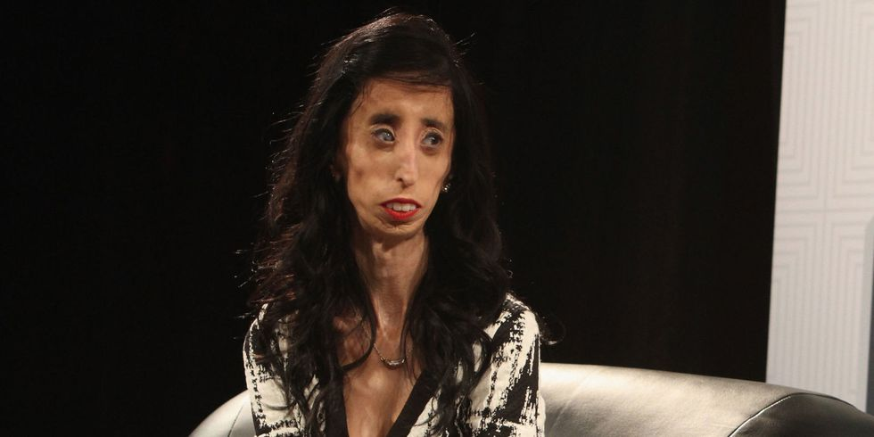 "Cosmopolitan - ""Lizzie Velasquez, 26, who went viral as the"