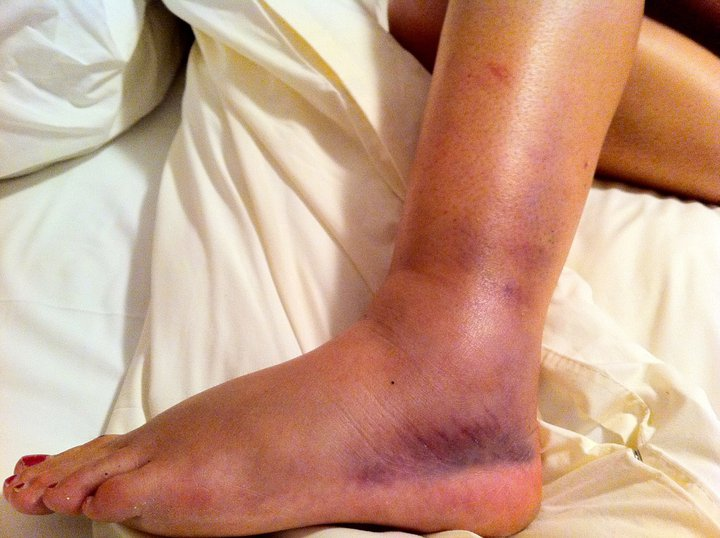 Hike responsibly or you could end up with this ankle!!