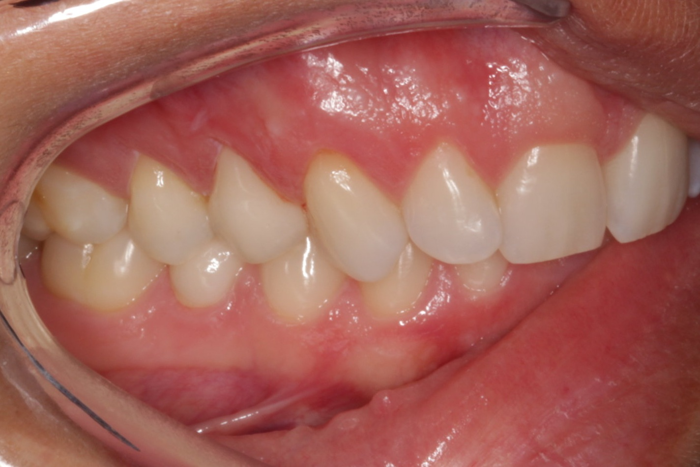 Can you guess which tooth has the crown that Dr. Sunayna did on this patient?