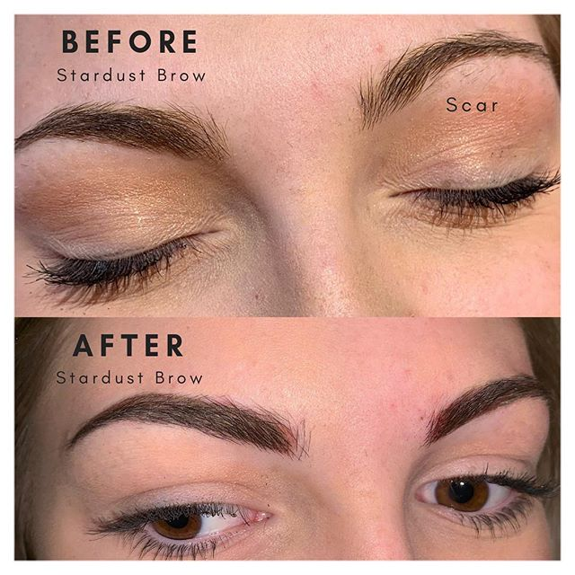 """Loving this new master technique and finding perfect symmetry through the """"stardust brow"""". This is soft brow that appears more shaded and  that heals to a perfectly soft and penciled- in look without appearing harsh.  While also creating a sharp contour for shape and symmetry.  This client had a scar that caused asymmetry between her brows.  This is just day 1!  Can't wait to post the healed results from this sweet client.... I just had to share!!! #nofilter #outlinerstudio #permanentmakeup #permanentmakeupartist #outlinerstudio #permanentmakeupbrows #microblading #permanenteyeliner #permanentlips #permanentlashenhancement #microbladingeyebrows #wakeupmadeup #beauty #beautytips #beautytip #mobilealabama #mobileal #fairhopealabama #spa #eyelashes #eyelashextensions #xtremelashes #beautycare #correctiveprocedure #lashstylist #girlsboss #wakeupandmakeup #somobile  #artist #loveyourself #beautiful"""