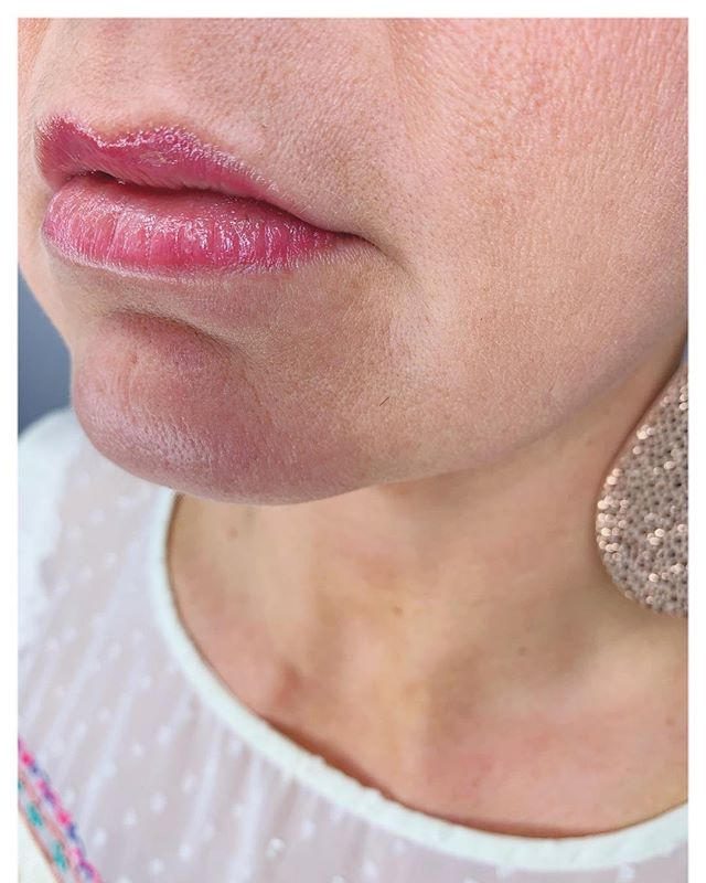 A soft, sultry, and natural ombré lip using #permanentmakeup for this precious client! This is just 2 weeks after 1 #permanentlip treatment using the #nanolip technique! 💋💋💋 Her lips will be complete after her 6 week touch up for lasting results!! To obtain the full effect of the ombré nano lip    This new technique creates LASTING and absolutely stunning results for #permanentlip treatment! I am constantly seeking the most modern advances and master training give my clients the best permanent makeup there is to offer! I am located at 2154 Airport Blvd OR you can call @theparkclinicmedspaatthepark to schedule a free consultation today! I am excited to offer #permanentmakeup Monday-Wednesday at @theparkclinicmedspaatthepark 🖤 #wakeupmadeup #outlinerstudio DM or call (Mary Emily)251. 209. 0199 @outlinerstudio is located at @identitysalonmobile Thursday   Friday and @mprsd on Monday, Tuesday, and Wednesday!! 🖤🖤🖤🖤🖤🖤🖤🖤🖤🖤🖤🖤🖤🖤🖤 •Master Brow Certification   Stardust Brow   Nouveau Contour •American Academy of Micropigmentation •@beauinstitute in permanent makeup: Eyebrows, microblading, lips, eyeliner, and lash enhancement •Salt Removal + Color Correction •Advanced 3D Areola •Scar Camoflauge • Advanced microblading •Licensed by the ADPH •Certified @xtremelashes #lashstylist in Mobile •BFA from the University of South Alabama #artist with a concentration in painting •RDCS, RVT