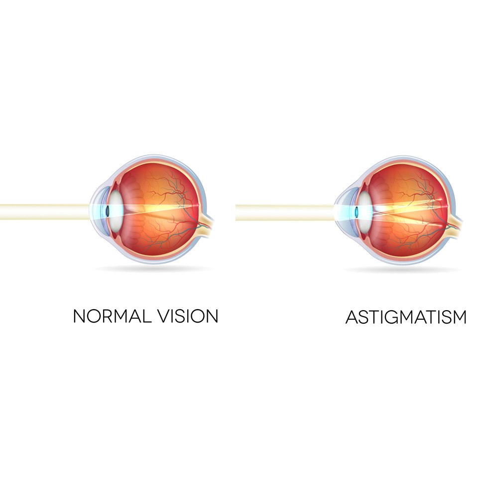 Image credit: Laser Eye Hub Surgery