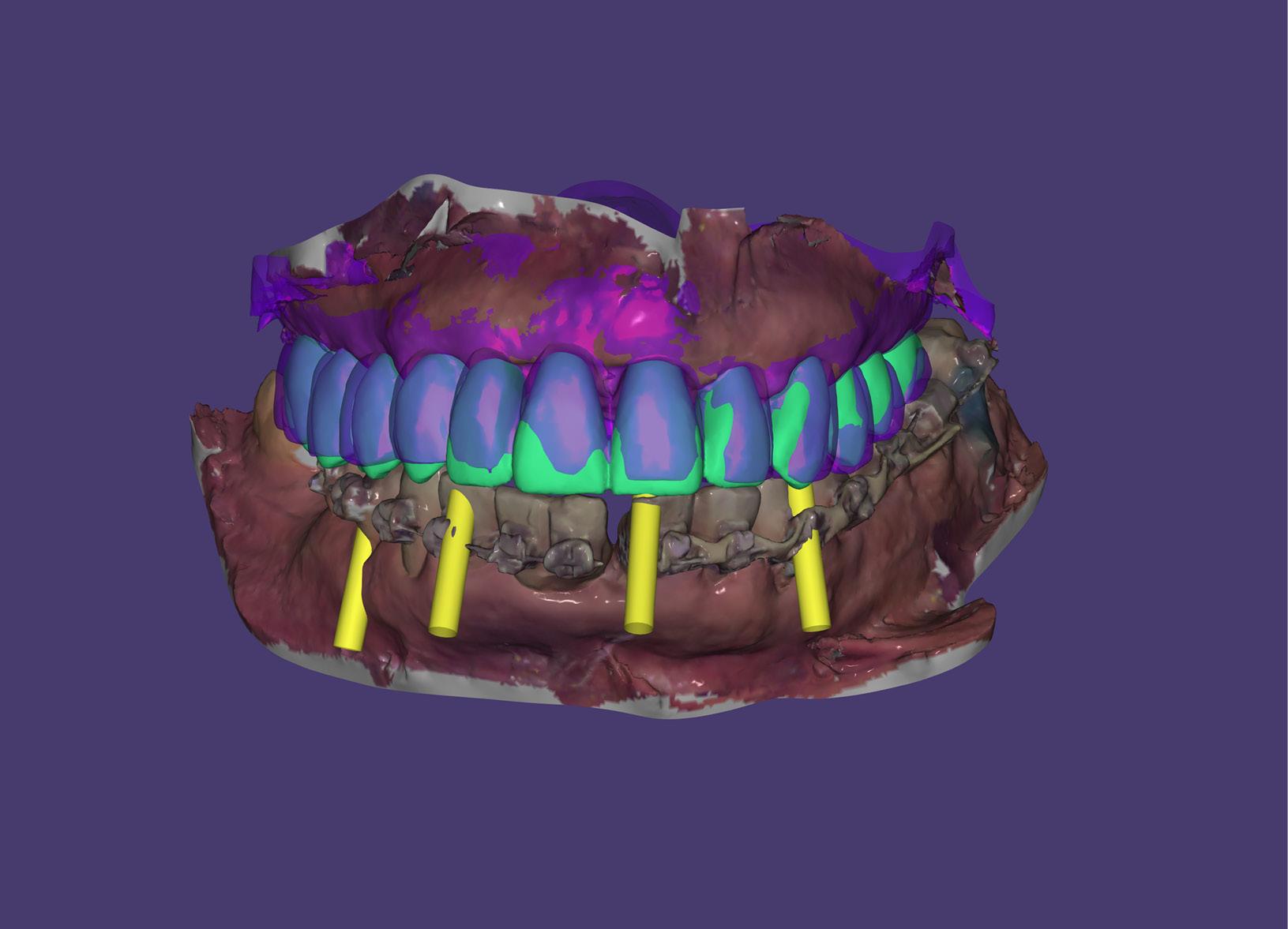 Un estudio en tres dimensiones facilita la realización de cualquier cirugía de implantes con la comodidad de no tener que desplazarse a otro centro y la rapidez y calidad que nos ofrece el escaner 3D InTero, así como con los más moderno software de diagnóstico y planificación. -