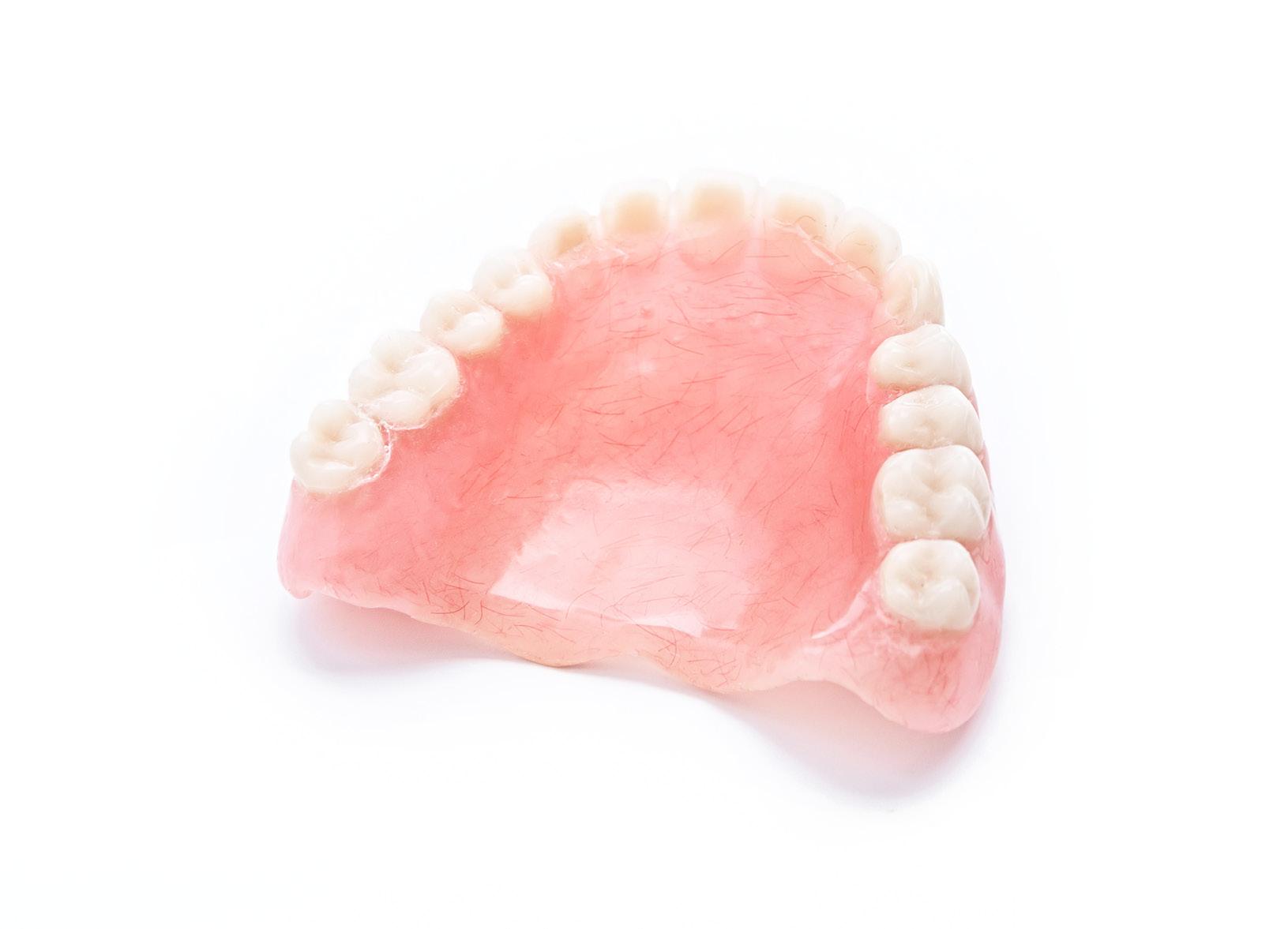 Prótesis - Cuando hemos perdido algun diente y necesitamos reponerlo, además de los implantes dentales también pueden realizarse los tratamientos tradicionales de prótesis fija sobre dientes naturales o prótesis removible (de poner y quitar).