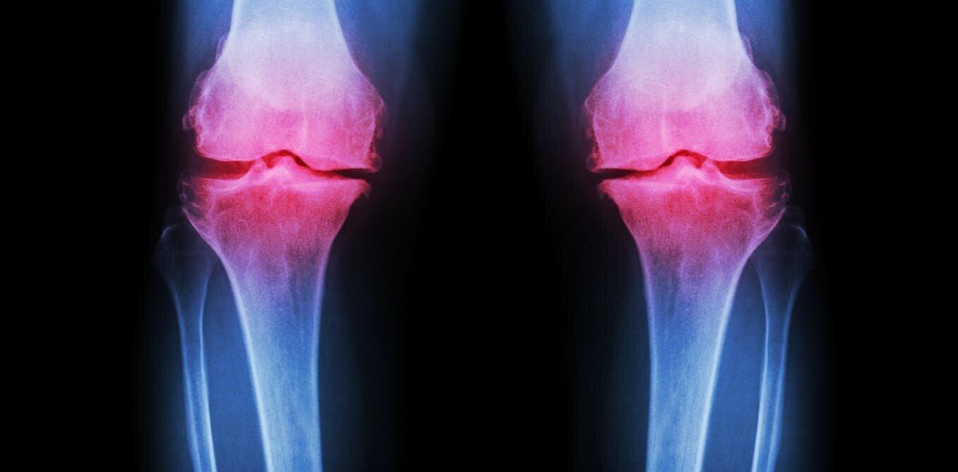 Exercises for Osteoarthritis.jpg
