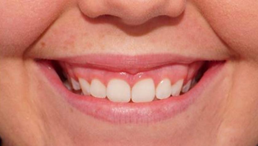 Flagstaff-Gummy-Smile-Reduction-2.jpg