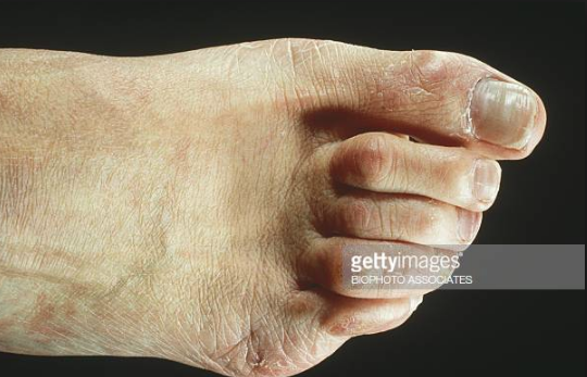hammertoes.png