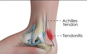 achilles tendon.png