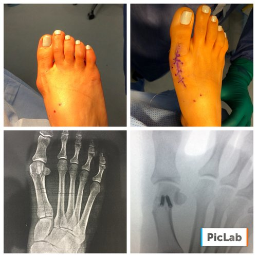4 weeks status post bunionectomy performed by Dr. Levine