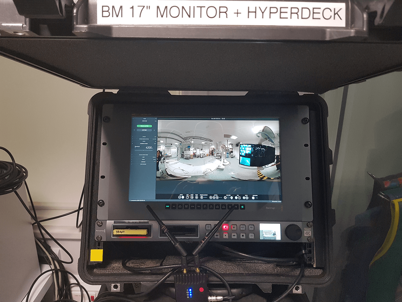 "The Hyperdeck, 17"" monitor and live stitch set up which allowed us to film multiple procedures without interruption."