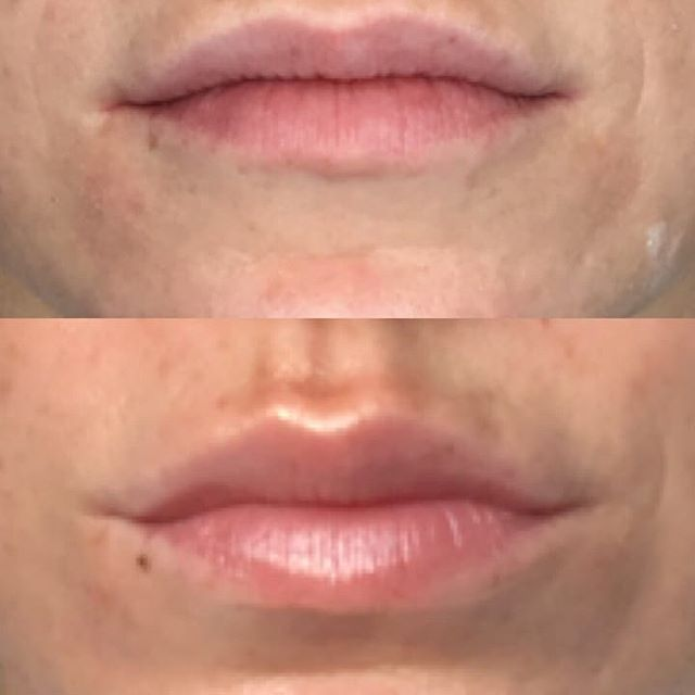 A little goes a long way! With just a small amount of botox and five short minutes Leslie created this great result! Ask for a #lipflip