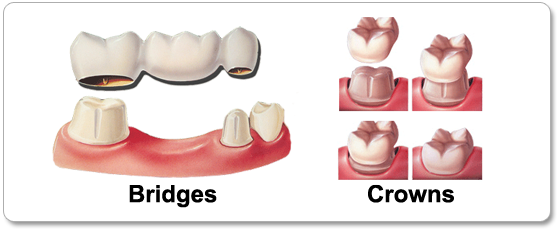 Dental-Crowns-and-Bridges (1).png