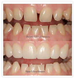 dental-veneers.jpg
