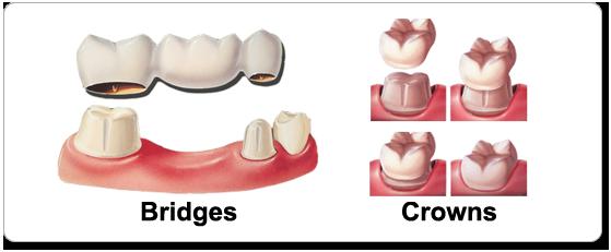 Dental-Crowns-and-Bridges+(1).png