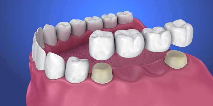 Contact Dentistry @ Renfrew to discuss Crowns and Bridges. We're here to help anytime!
