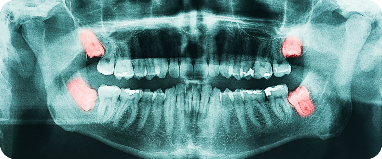 wisdom-teeth-removal.jpg
