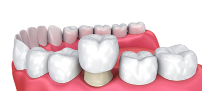 Crowns  - Restoring Damaged  Teeth . You may need a  crown  if you have a root canal, a large filling in a  tooth  or a broken  tooth . A  crown , also called a  cap , is a hollow, artificial  tooth  used to cover a damaged or decayed  tooth . The  crown  restores the  tooth  and protects it from further damage. -