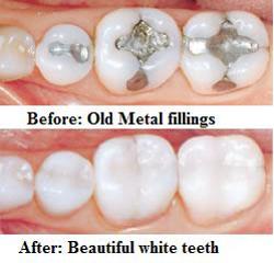 coloured-dental-fillings-before-after.png