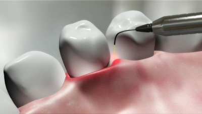 To Learn more about Periodontal Therapy  Contact Us  Today.
