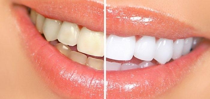Effective Teeth Whitening in Renfrew Ontario