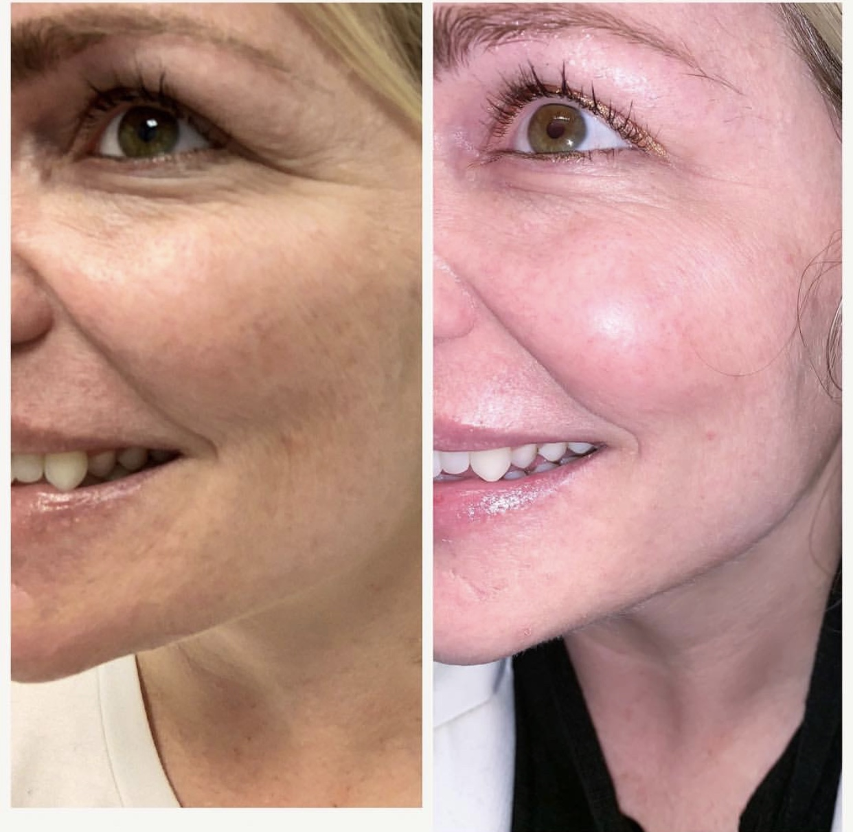 The Magic of BOTOX, yes the lighting is different, but not even good lighting can eliminate and relax wrinkles