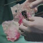 implant1_150px
