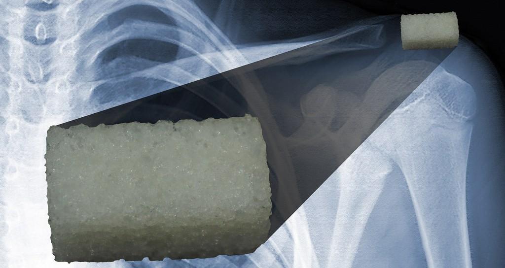 3D Printing Bone Growth