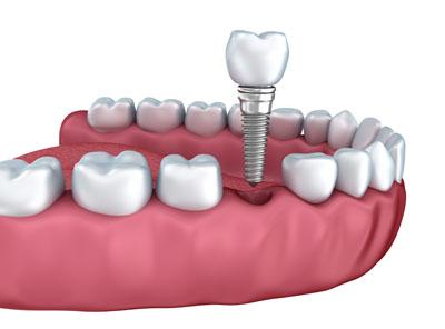 dental-implants1122.jpg