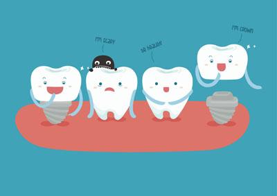 dental-implantNKS0831.jpg