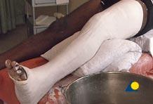 broken-leg-in-plaster