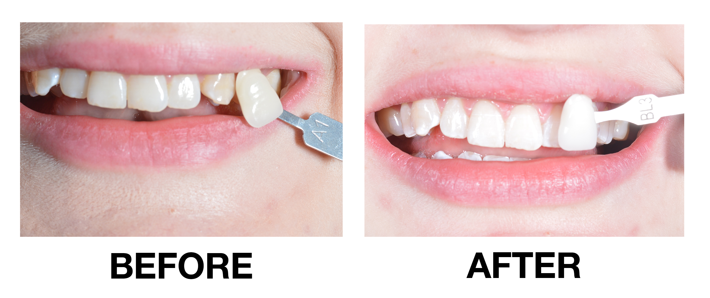before-and-after2.jpg