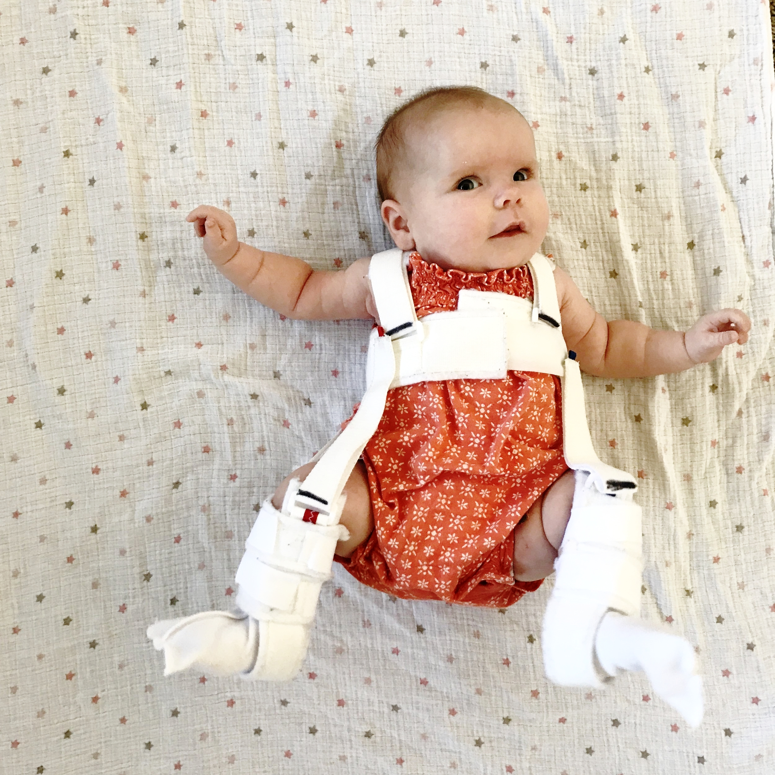 Two months old and in her pavlik harness to correct the hip dysplasia.