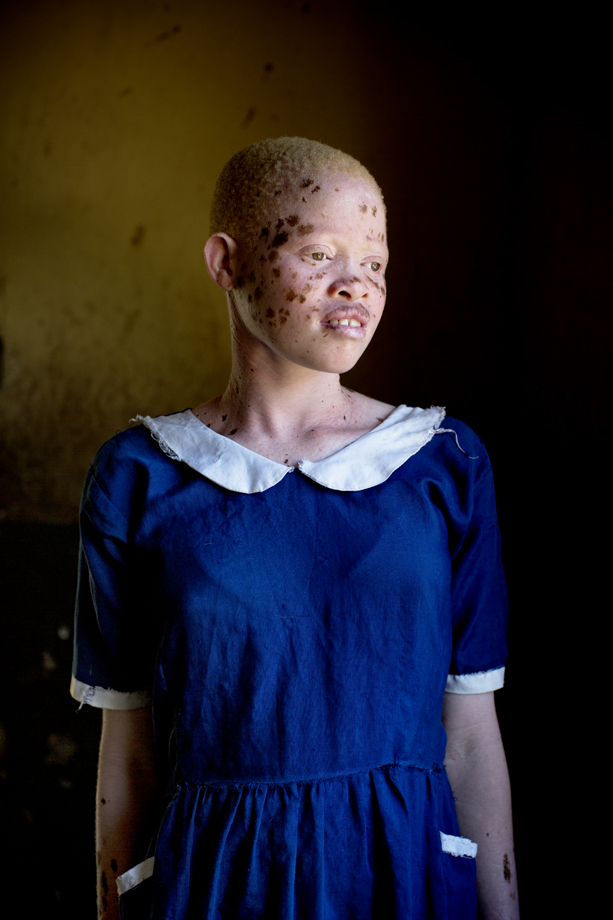 Albino girl who lives in sheltered accommodation, Malawi