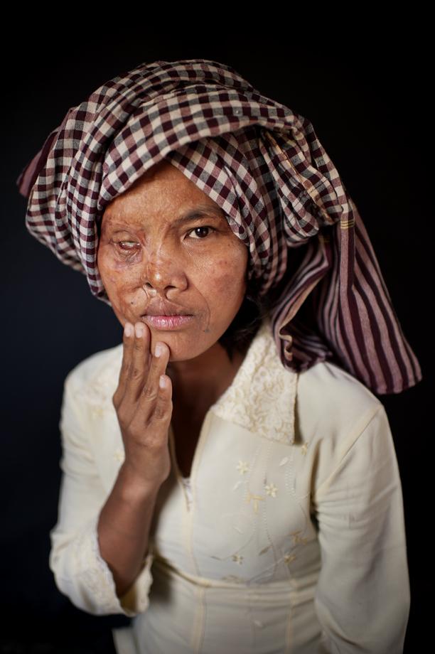 Acid attack survivor, Phnom Penh / Cambodia