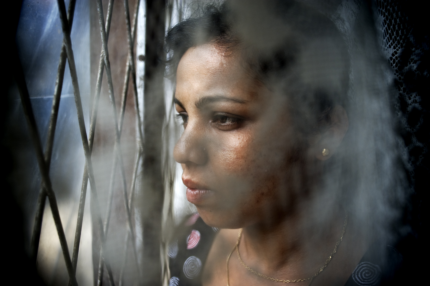 A former maid who escaped from Saudi Arabia after violent abuse from the employer / Sri Lanka