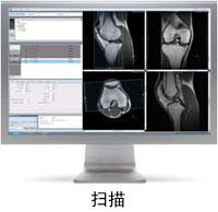 knee-scan-1.jpg